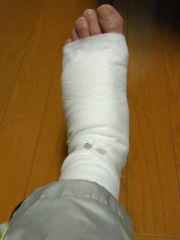 骨折した左足