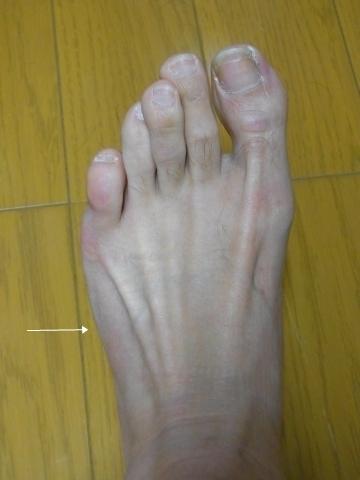 今日の左足